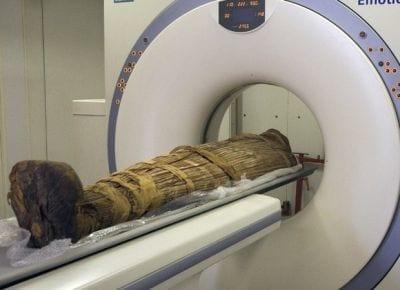 Estudo confirma que múmias de 4.000 anos tiveram problemas cardíacos