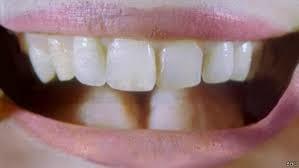 Cientistas usam urina humana para recriar dentes