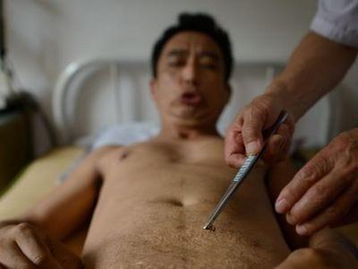 Picadas de abelhas são usadas na China em sessões de acupuntura