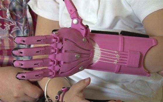Menina sem dedos recebe prótese feita a partir de impressora 3D