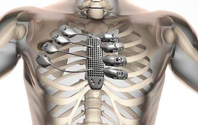 Costelas s�o fabricadas a partir de impressora 3D