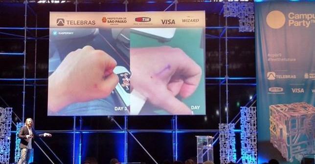 Especialista mostra como funciona sua rotina diária com chip implantado na mão