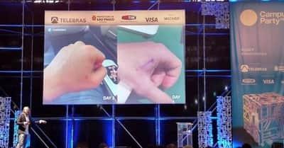 Especialista mostra como funciona sua rotina di�ria com chip implantado na m�o