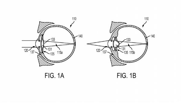 Google registra patente de mecanismo que é implantado no olho
