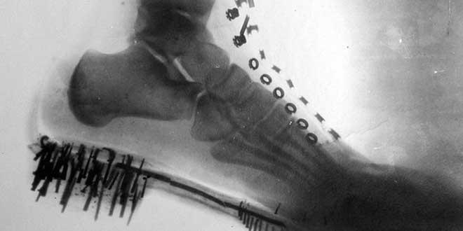 Nikola Tesla produziu a primeira imagem de raio-x (Imagem: Reprodução/Internet)