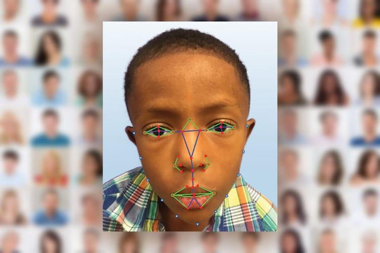 Sistema de reconhecimento facial irá contribuir no diagnóstico de doenças genéticas