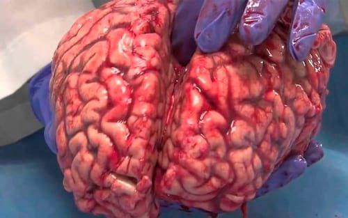 Transplante de cérebro poderá ser feito até 2020, afirma cirurgião