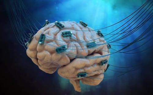 Pela primeira vez, cientistas conectam cérebro humano à internet