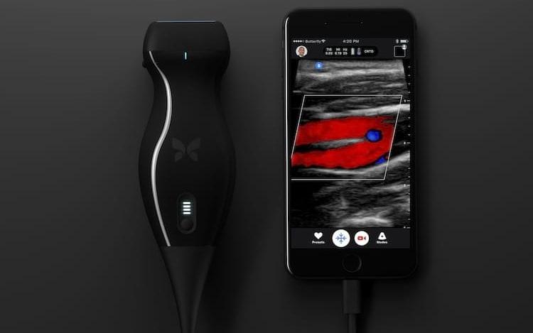 Médico identifica o próprio câncer com auxílio de iPhone.