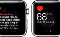 Apple Watch consegue detectar diabetes em 85% dos testes
