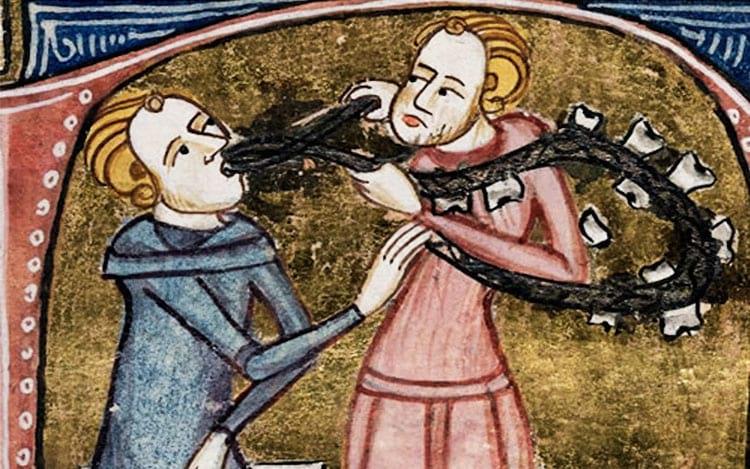 Não era fácil ir no dentista na Idade Média