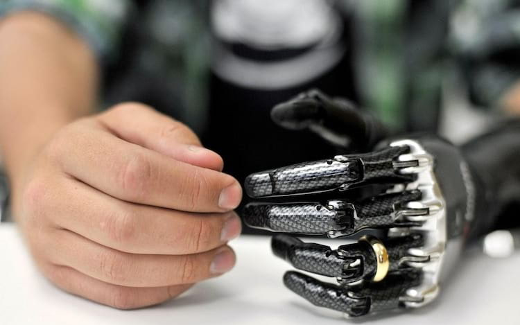 E-dermis allows sensation of touch and pain in bionic hand.
