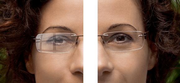 Revestimento Anti-reflexo