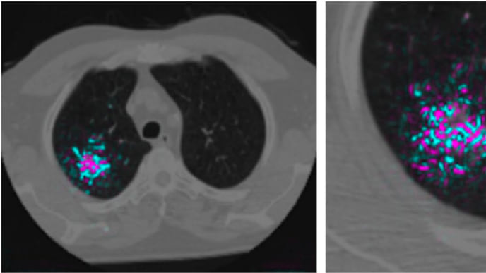 Algoritmo vai fazer com que câncer de pulmão seja detectado mais facilmente.