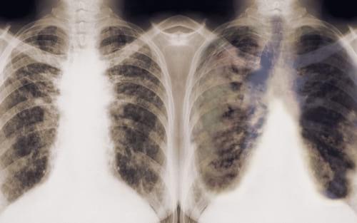 Google desenvolve algoritmo capaz de detectar câncer de pulmão