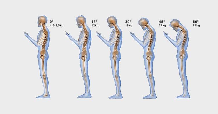 """Pesquisas anteriores já alertavam para a síndrome do """"pescoço de texto"""""""