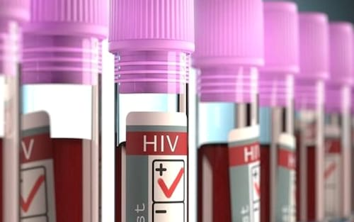 Pesquisadores norte-americanos conseguem remover totalmente vírus HIV de animais vivos